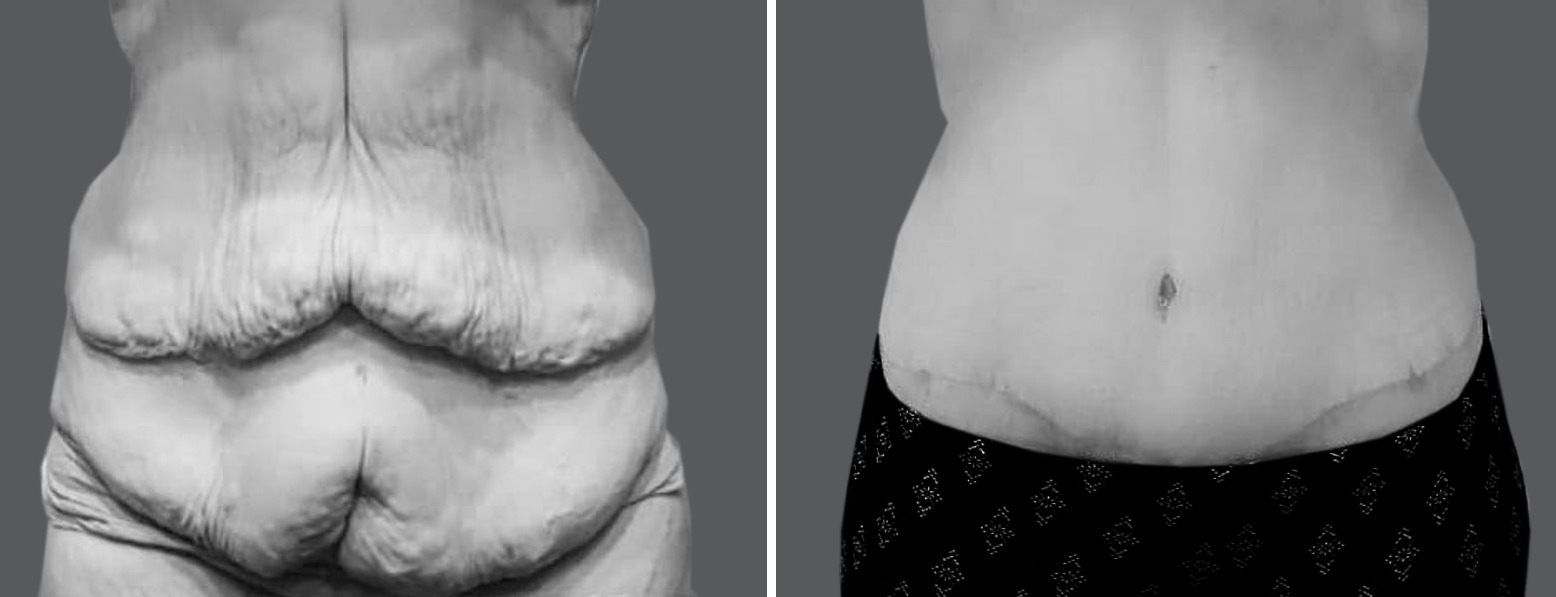 Skin Removal Surgery After Weight Loss Surgery   Dallas, Frisco ...